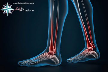 Why it is never a 'simple ankle sprain': diagnosis, treatment & prevention of ankle sprain injuries
